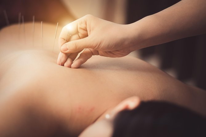 Acupuncture for Muscles, Pain, Tension & Postural Problems